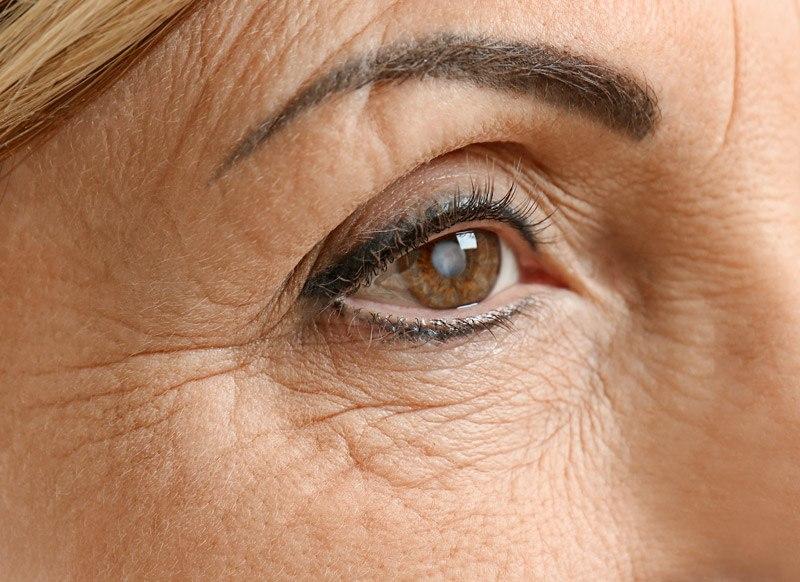 cataract prevention for elderly