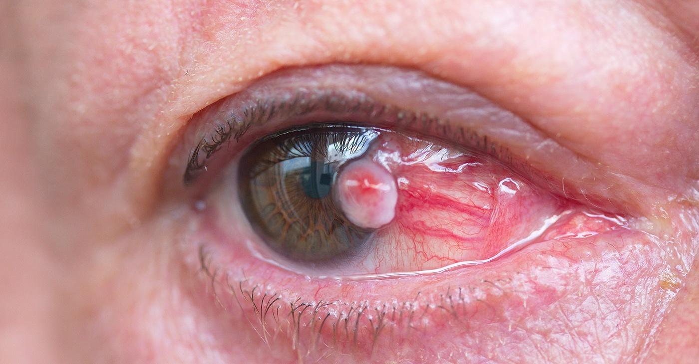 eye-with-pterygium