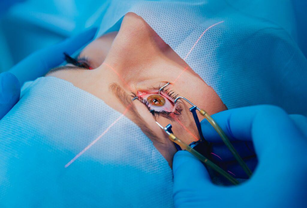 patient and team of surgeons in the operating room during ophthalmic surgery