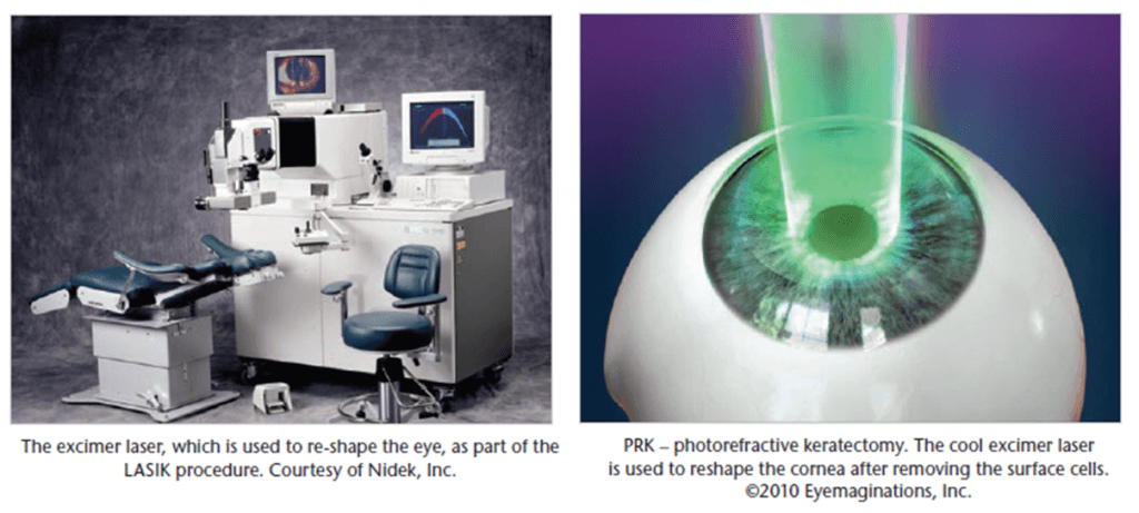Photorefractive keratectomy laser surgery tool comparison
