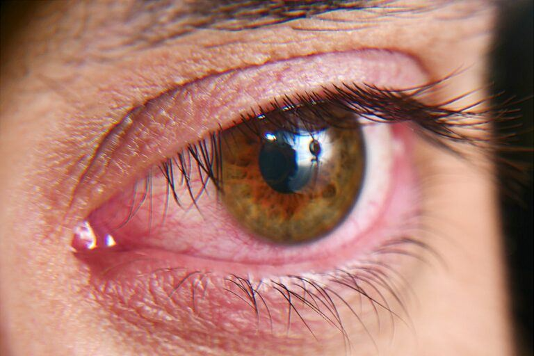 closeup of person with bloodshot eyes
